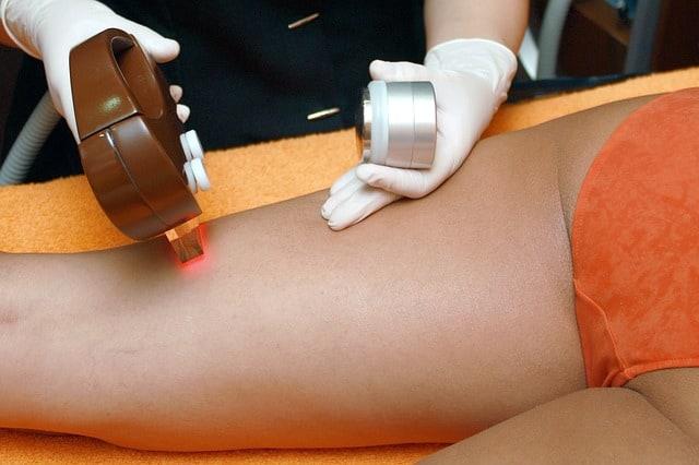 лазерна епилация